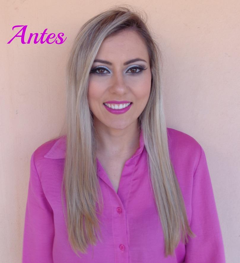 Antes 2